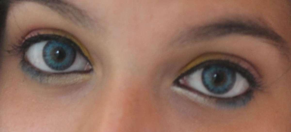 Inghilterra: donna vive per 35 anni con 27 lenti a contatto in un occhio